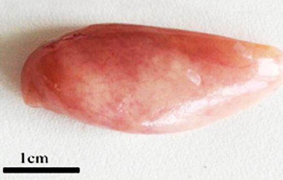 使用饲料不当导致肝脏发白,纤维化